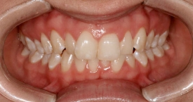 invisalign-before2