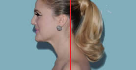 Forward Head Posture - Drew Barrymore