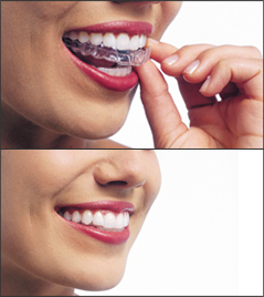 Invisalign - removable braces