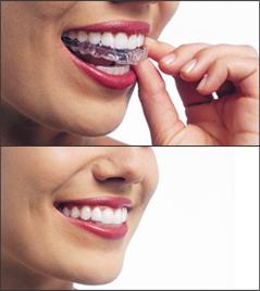 Invisalign - removable braces